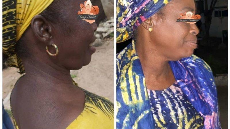 Traitement ochronose exogène et hyperpigmentation après arrêt de la depigmentation .