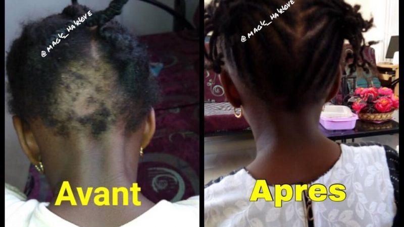 Traitement de chute de cheveux